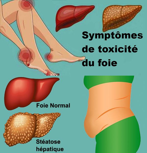 foie transpiration excessive