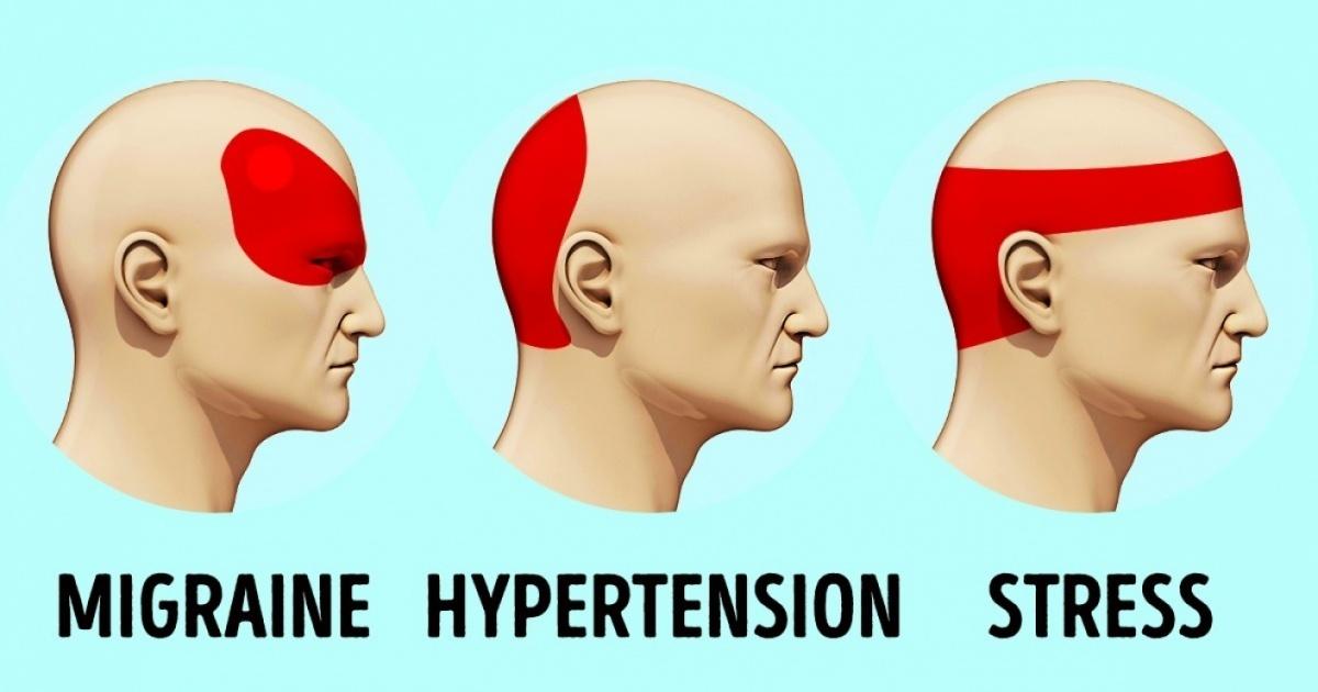Comment se débarrasser d'un mal de tête sans antalgique en 5 minutes - Santé Nutrition