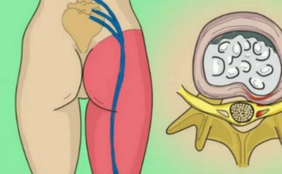 Essayez ces 2 solutions très efficaces pour libérer le nerf pincé dans la zone lombaire et éliminer la douleur insupportable!