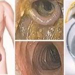 Week-end détox de 48 heures pour le foie, le colon et les reins qui va éliminer toutes les toxines et les graisses de votre corps