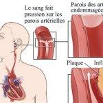 L'hypertension: Le tueur silencieux, 7 conseils pour la guérir naturellement