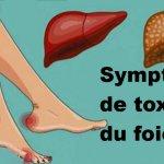 11 Signes que votre foie ne fonctionne pas bien et que les toxines s'accumulent dans votre corps