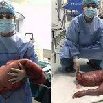 Des médecins retirent 13 kilos de matières fécales d'un homme constipé